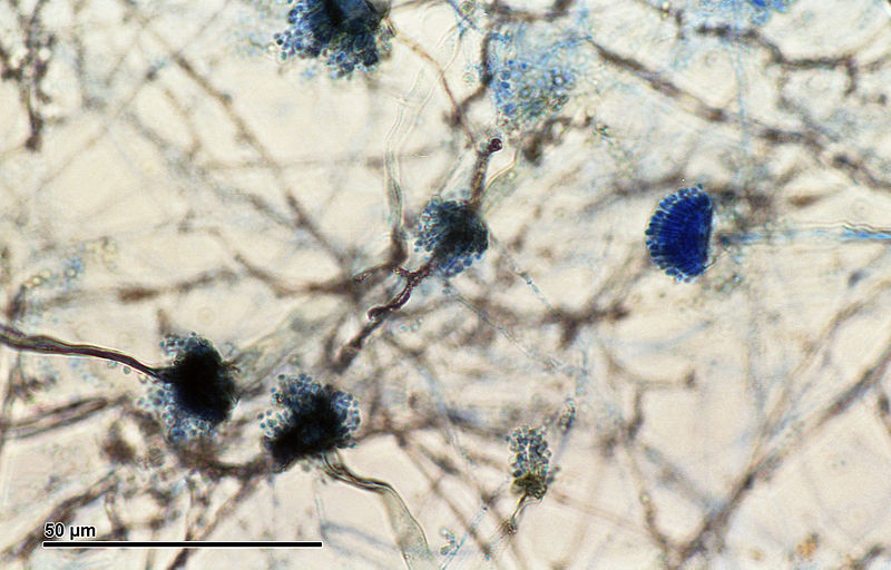 What Happens to a Pathogenic Fungus Grown in Space? | The ...