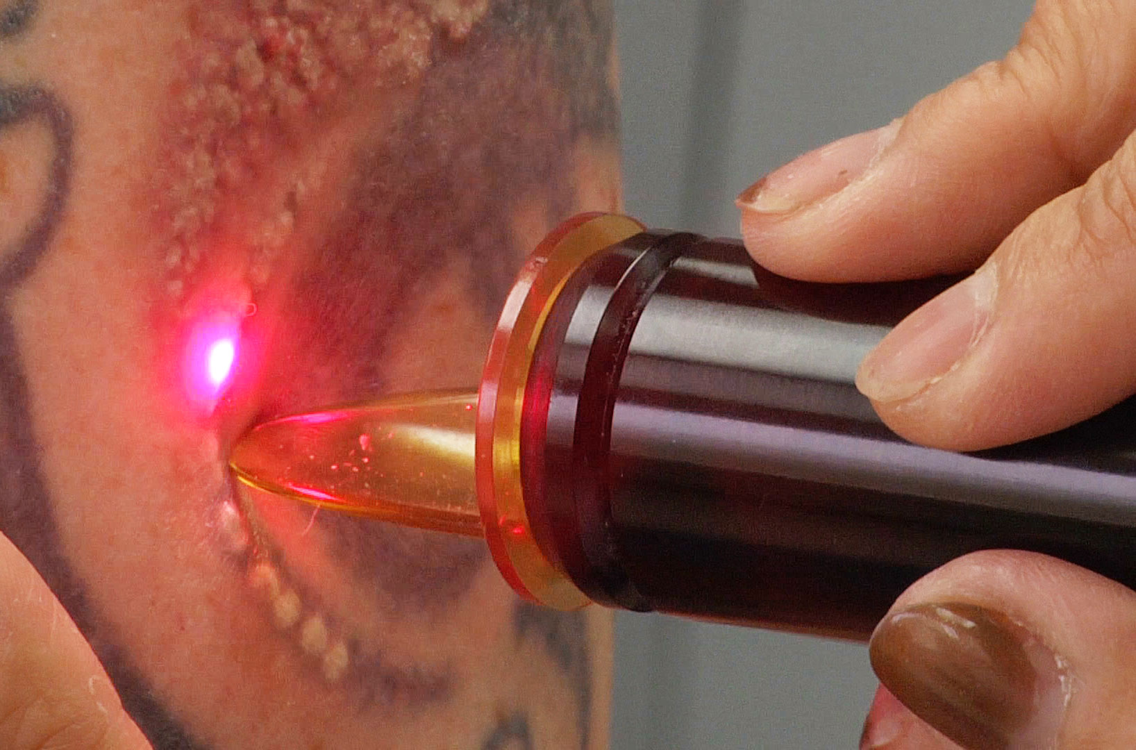 the science behind laser tattoo removal the science explorer
