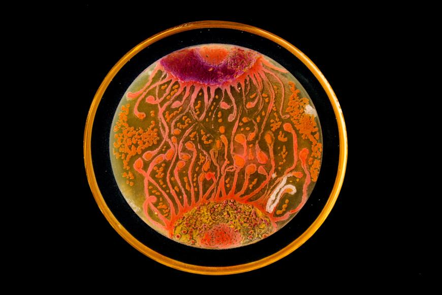 Agar art of cell-to-cell communication