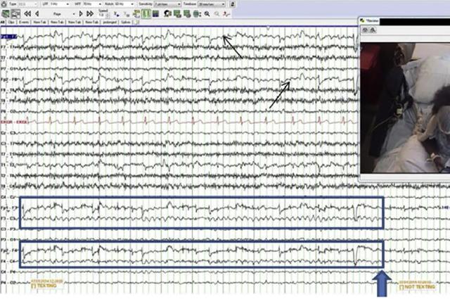 EEG of the texting rhythm