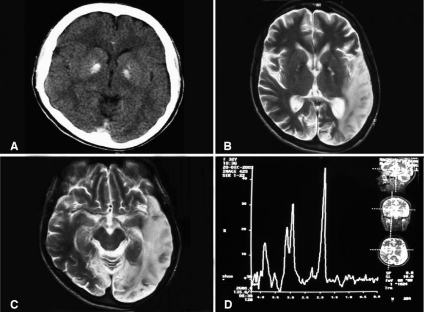 A computed tomography brain scan showing bilateral basal ganglia calfication
