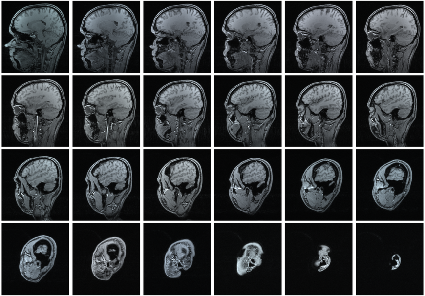 Results of an MRI scan. 24 thin sections of the human head
