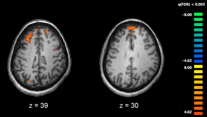 fMRI of the brain comparing healthy and schizophrenic individuals
