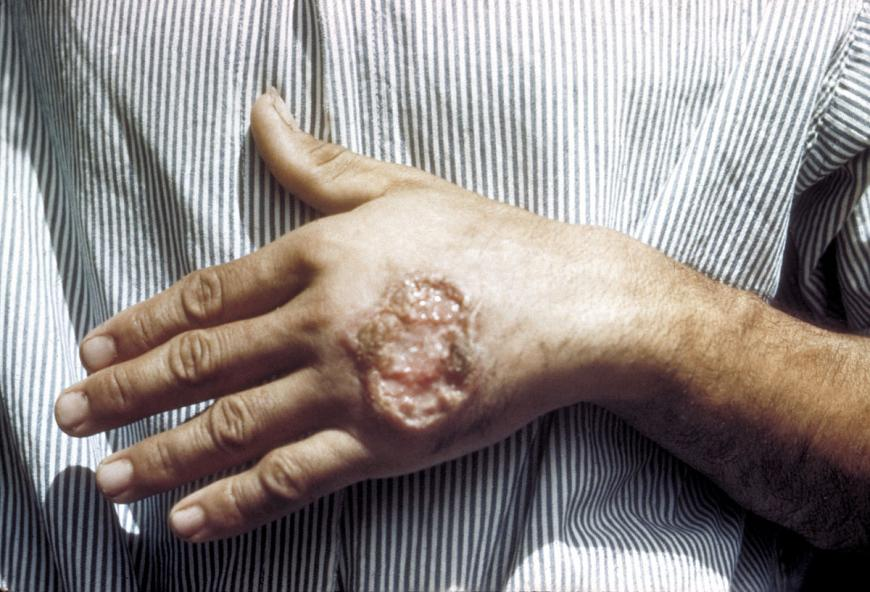 Photo of a large, open ulcer on the back of a patient's hand