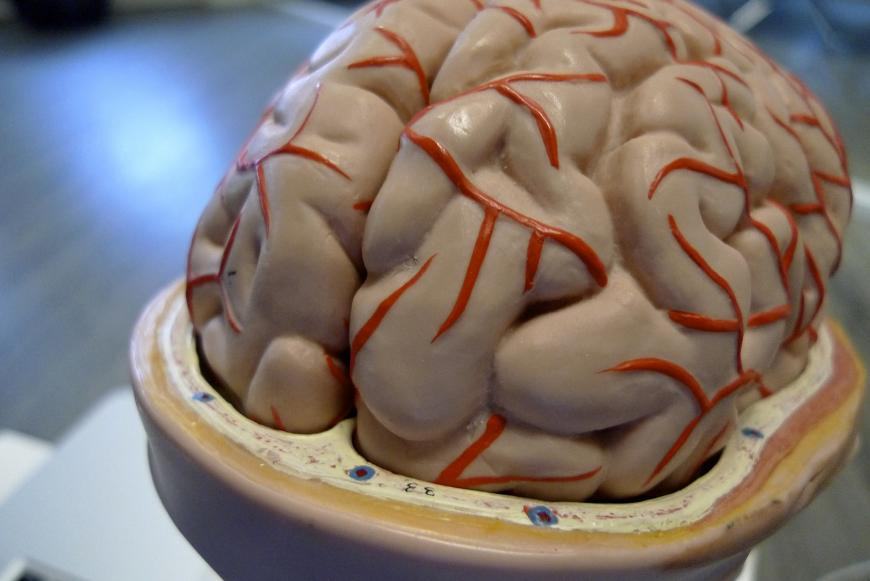 Plastic model of a brain