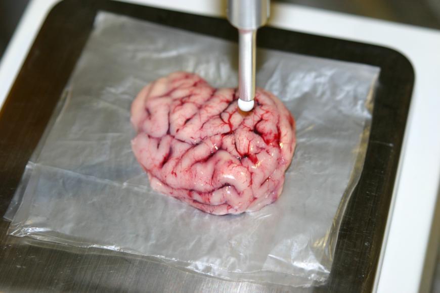 Intelligent scalpel identifies tumors in a pig's brain
