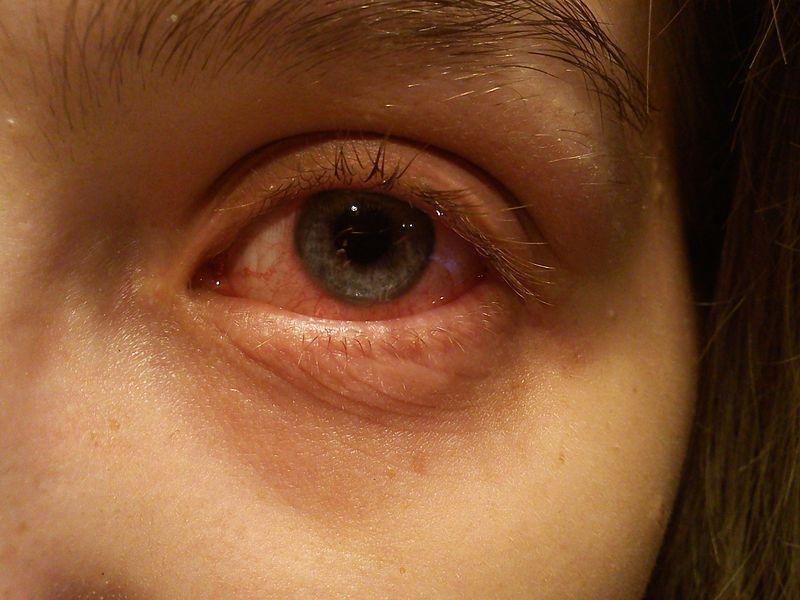 Explainer: What is Conjunctivitis and How Did I Get it