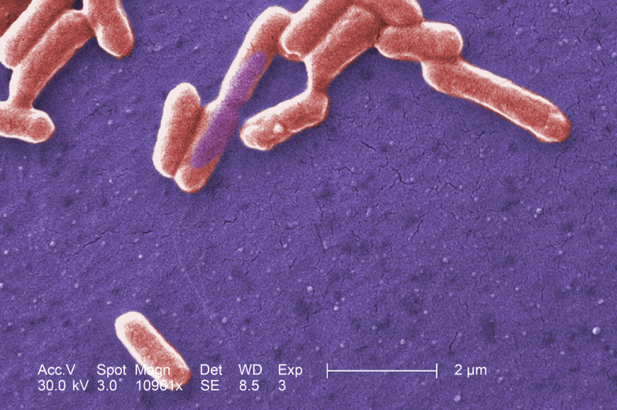 Escherichia coli bacteria seen under a scanning electron microscope