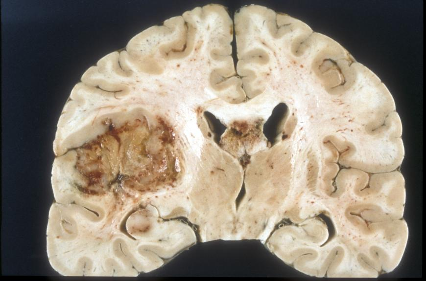 Macroscopic pathology of glioblastoma.