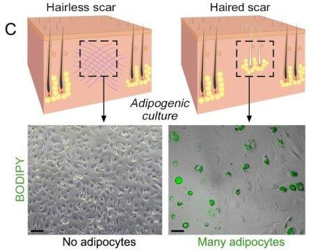 Using fat to help wounds heal without scars