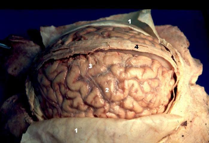 Watch A Neuroscientist Slice A Human Brain Into Slivers The