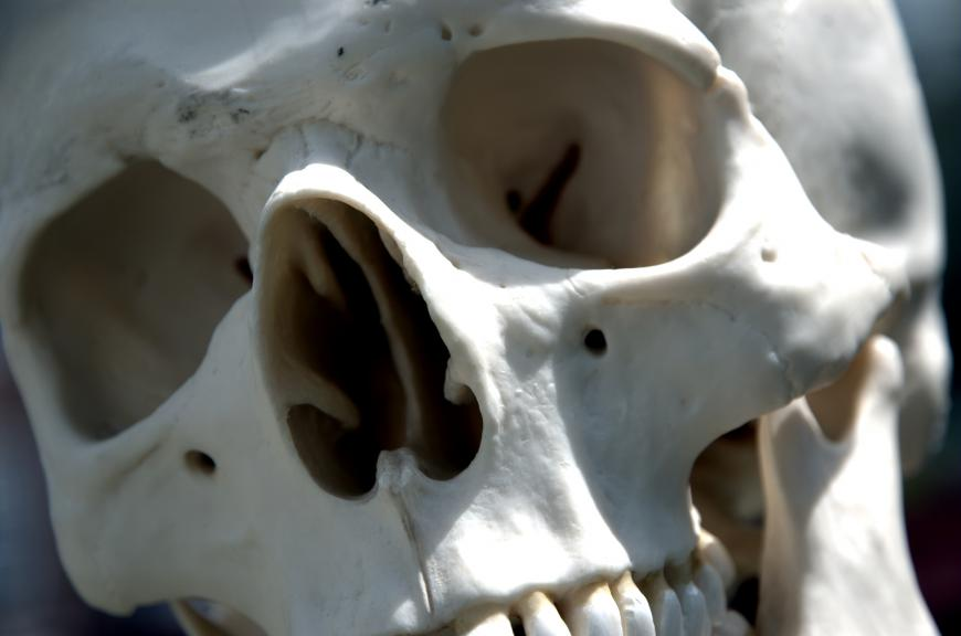 Closeup of human skull. The bone is white.
