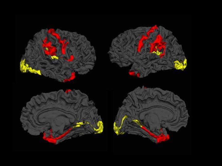 MRI imagery of schizophrenic brain.