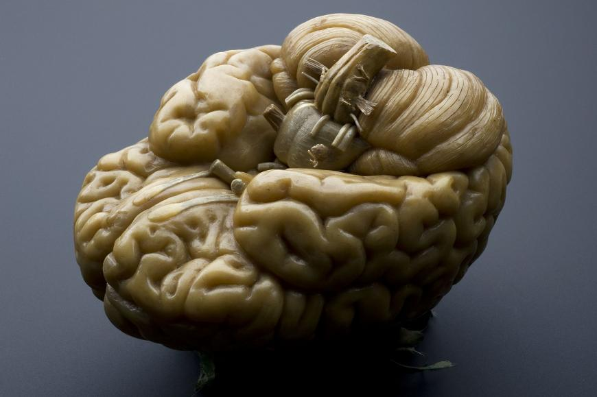 Plastic model of human brain