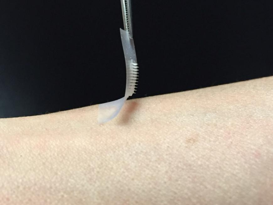 Insulin patch with microneedles