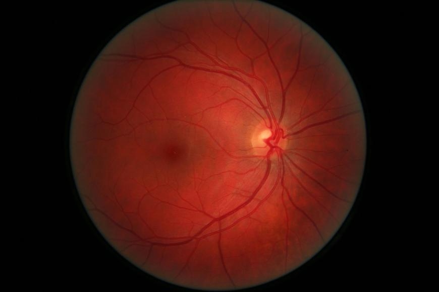 Right eye retina