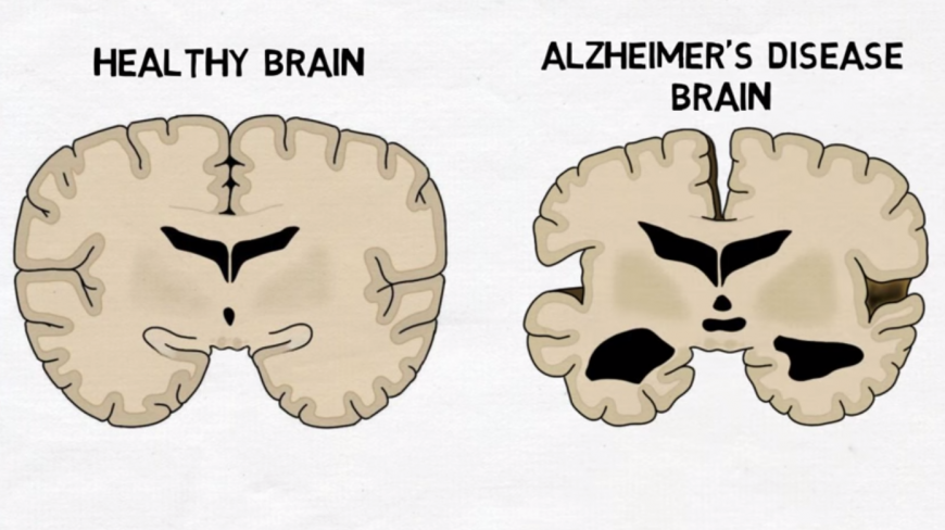 Alzheimers Disease  >> Understanding The Neuroscience Behind Alzheimer S Disease In 2