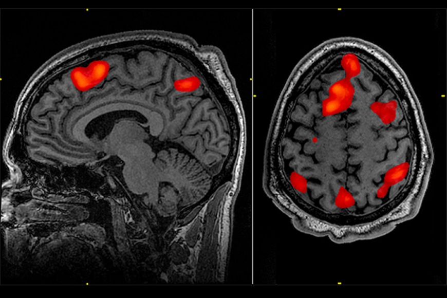 Black and white brain scan with small regions of the brain highlighted in red