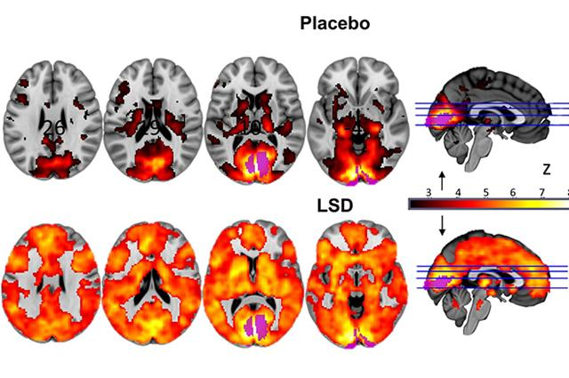 Neural correlates of the LSD experience revealed by multimodal neuroimaging