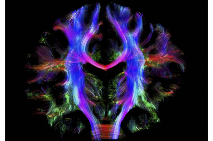 Nerve fibers in the brain