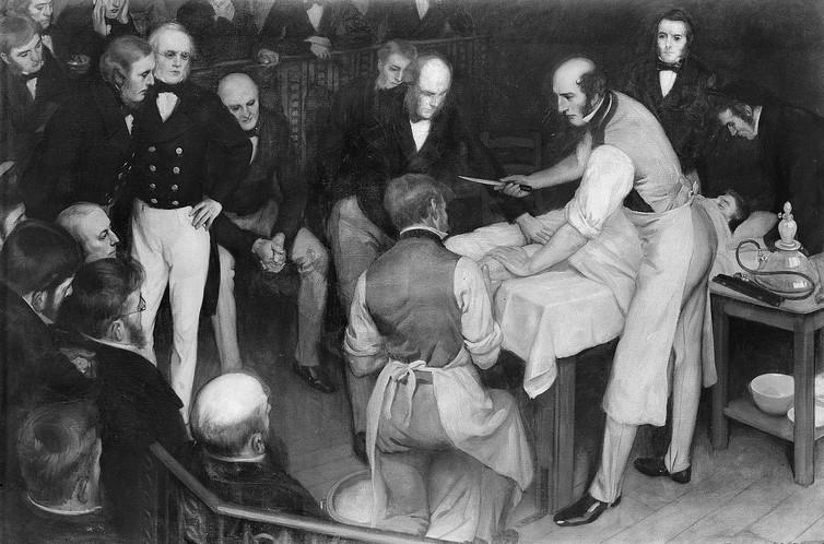 Robert Liston performing an amputation in the 1800s