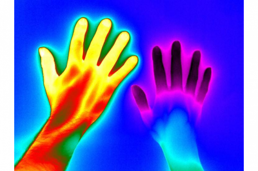 Infrared image of healthy hand versus hand with Raynaud's disease