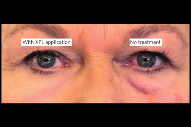 Second Skin removes the look of eye bags