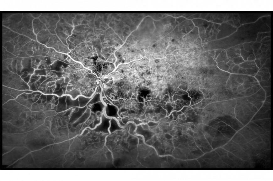 Blood vessels in the eye
