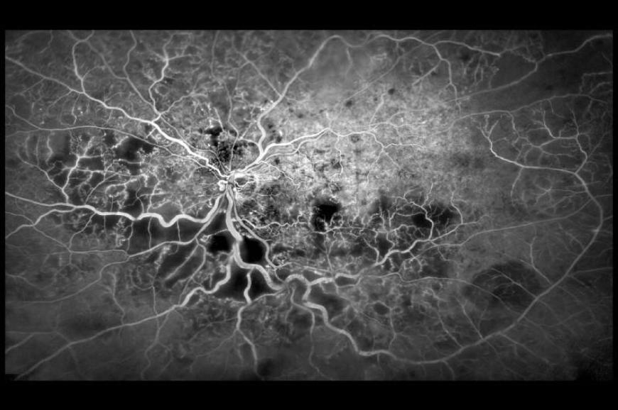 Blood vessels in the eye