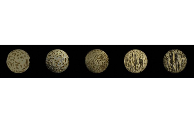 Stages of bone development