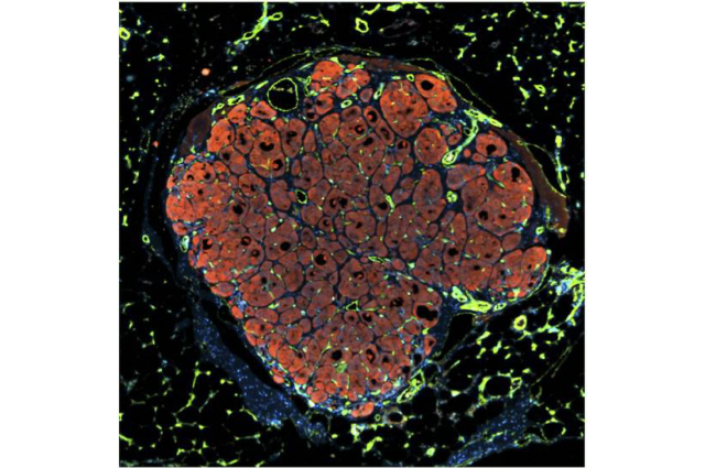 Human liver tissue