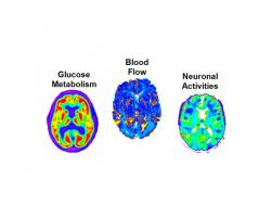 Brain scans of blood flow, glucose metabolism, and neuronal activities, used to measure amyloid concentration
