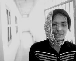 victims of acid attacks