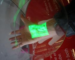 VeinViewer locates veins using infrared light