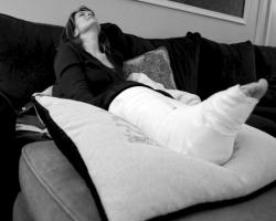 Black and white photo of woman with ankle in a cast