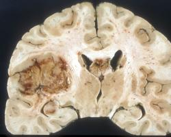 Macroscopic pathology of glioblastoma.