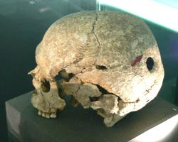 Human skull with trepanation.