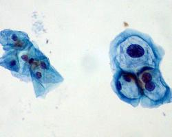 Pap smear comparing normal cervical cells (left) and HPV-infected cells (right)
