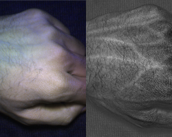 Veins in a human hand, revealed by the HyperCam