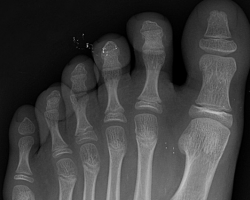 x-ray of polydactyly. Six toes on a foot